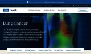 Lungcancer.ucla.edu thumbnail